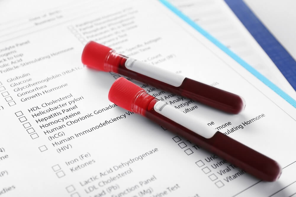 Blood tests and checklist for STD check in Singapore